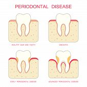 stock photo of gingivitis  - human tooth periodontal disease - JPG