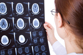 stock photo of cat-scan  - Female doctor examining a brain cat scan - JPG