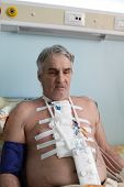 stock photo of pacemaker  - Man with pacemaker after heart surgery in a hospital ward - JPG
