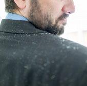 Business man having man dandruff in the hair