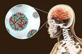 Venezuelan Equine Encephalitis, Medical Concept, 3d Illustration Showing Brain Infection And Close-u poster