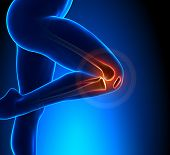 Knee Pain Superior View