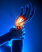 Wrist pain - detail