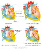 pic of hypertrophy  - Human Heart  - JPG