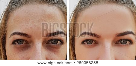 poster of Eye Girl Bag Under The Eyes Before And After Cosmetic Procedures