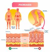 Psoriasis Vector Illustration. Autoimmune Skin Disease And Illness. Labeled Structure With Scales, P poster