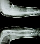 X-ray of human arm with arm splint.