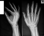 X-ray of human hands.