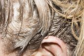 Hair Coloring.hair Smeared With Hair Dye.background Of Hair. poster