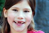 picture of toothless smile  - toothless little girl gives a big smile - JPG