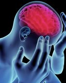 stock photo of temporal lobe  - Brain head ache - JPG