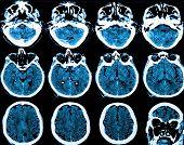 pic of magnetic resonance imaging  - MRI  - JPG