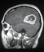 Mri Brain Sagittal