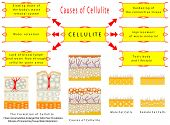 stock photo of flesh  - The Formation of Cellulite  - JPG