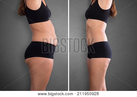 poster of Close-up Of Fat And Slim Woman Before And After Diet