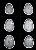 Brain Tumor Mri1