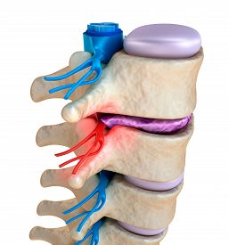 image of herniated disc  - Spinal cord under pressure of bulging disc - JPG