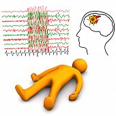stock photo of hemorrhage  - Orange cartoon character with apoplectic or epileptic stroke on the white background - JPG