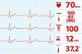 Modern Electrocardiogram Monitor Display
