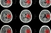 stock photo of hemorrhage  - CT scan of brain with red area  - JPG