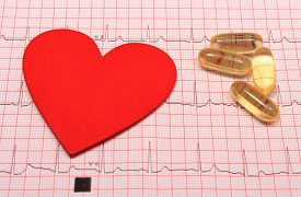 stock photo of ekg  - Electrocardiogram graph pills and heart shape ekg heart rhythm medicine concept - JPG
