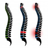 stock photo of vertebrae  - vector human spine silhouettes - JPG