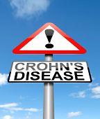 Morbus Crohn-Krankheit-Konzept.