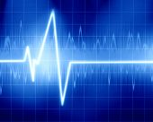 stock photo of blue-screen-of-death  - heart beat on display on a dark background - JPG