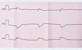 foto of life after death  - Tape ECG after clinical death and a successful resuscitation - JPG