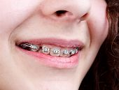 stock photo of overbite  - Young woman with brackets on teeth close up shot - JPG