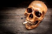 Skull With Cigarette, Still Life.