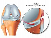 stock photo of trauma  - Medical illustration of the consequences of medial collateral ligament rupture - JPG