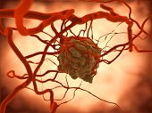stock photo of vicious  - Ab growing tumor induces an increased vascularization - JPG