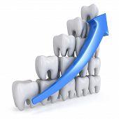 3D Teeth Bar Graph With Blue Arrow