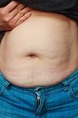 picture of fat-guts  - close up of a obese fat woman showing her belly - JPG