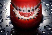 Open dentures