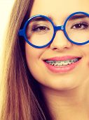 Nerdy Woman Showing Her Teeth With Braces poster