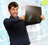 Young Man Holding X Ray Report Gesturing, Indoors