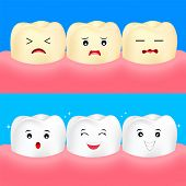 Cute Cartoon White And Yellow Teeth. Before And After, Whitening Oral Care Concept.  Dental Veneers  poster