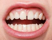 pic of tooth gap  - Diastema between the upper incisors is a normal feature - JPG