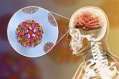 Western Equine Encephalitis, Medical Concept, 3d Illustration Showing Brain Infection And Close-up V poster