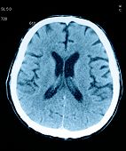 Tomography Of The Brain. Fragment Of Radiological Image.