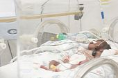 pic of premature  - Portrait of newborn baby sleeping inside incubator - JPG