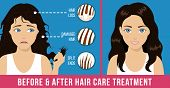 Hair Care. Common Problems - Split Ends, Damaged Hair, Hair Loss. Before And After Care Treatment. V poster