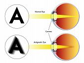 picture of refraction  - medical illustration of the symptoms of astigmatism - JPG