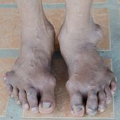 picture of gout  - oot of gout patient - JPG