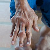 stock photo of gout  - Fingers of patients with gout - JPG