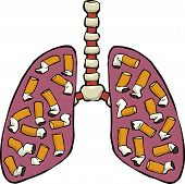 stock photo of bronchus  - Human lungs with cigarette butts vector illustration - JPG