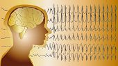 Medical Background Brain Epilepsy