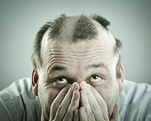 picture of alopecia  - Man with funny silly half bald hair - JPG